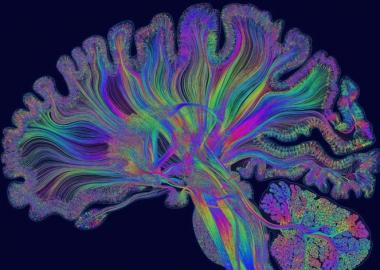 როგორ ავიცილოთ ტვინის ადრეული დაბერება