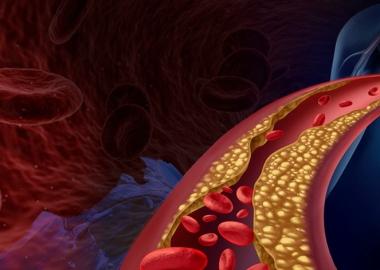 7 მარტივი გზა სისხლძარღვების ბუნებრივად გასაწმენდად