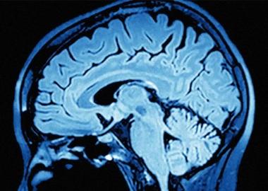 როგორ გვიცავს ტვინი სიკვდილზე ფიქრისგან