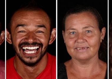 ბრაზილიელი სტომატოლოგი ღარიბ მოსახლეობას უფასო მომსახურებას სთავაზობს
